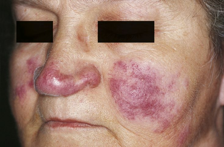 Lupus Pernio - can be found in Sarcoidosis