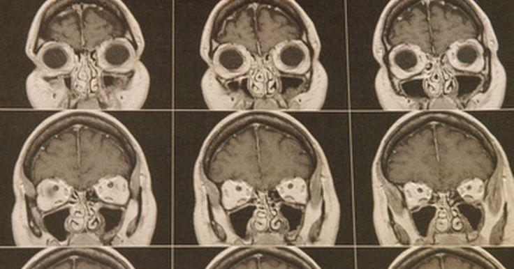 Consecuencias de un accidente cerebrovascular occipital . Un accidente cerebrovascular occipital se produce cuando los lóbulos occipitales del cerebro se dañan debido a la falta de sangre oxigenada. Un accidente cerebrovascular a menudo es causado por problemas con el flujo de sangre en el cerebro, tales como una arteria obstruida o una arteria que estalla. El daño a los lóbulos occipitales ocasiona ...