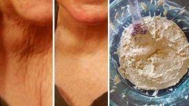 Oubliez le BOTOX et La Chirurgie ! Préparez cette solution naturelle pour ne plus avoir de peau relâchée…