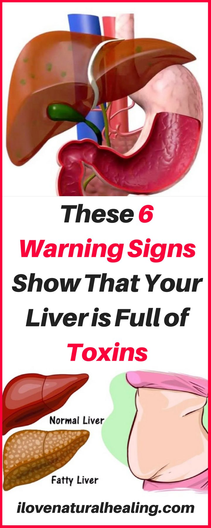 If not for the liver, toxins may accumulate in your body and cause numerous health problems.Here are 6 warning signs show that your liver is full of toxins.