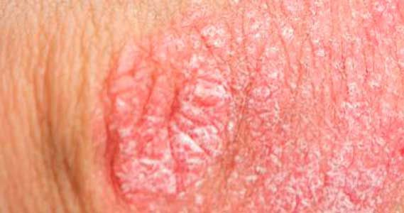 Dry skin on shaft of penis with itch