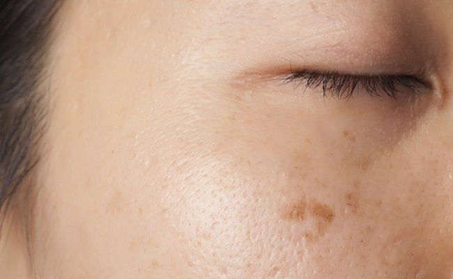 To eliminate dark spots and get an even tone, the traditional fix has been topical...