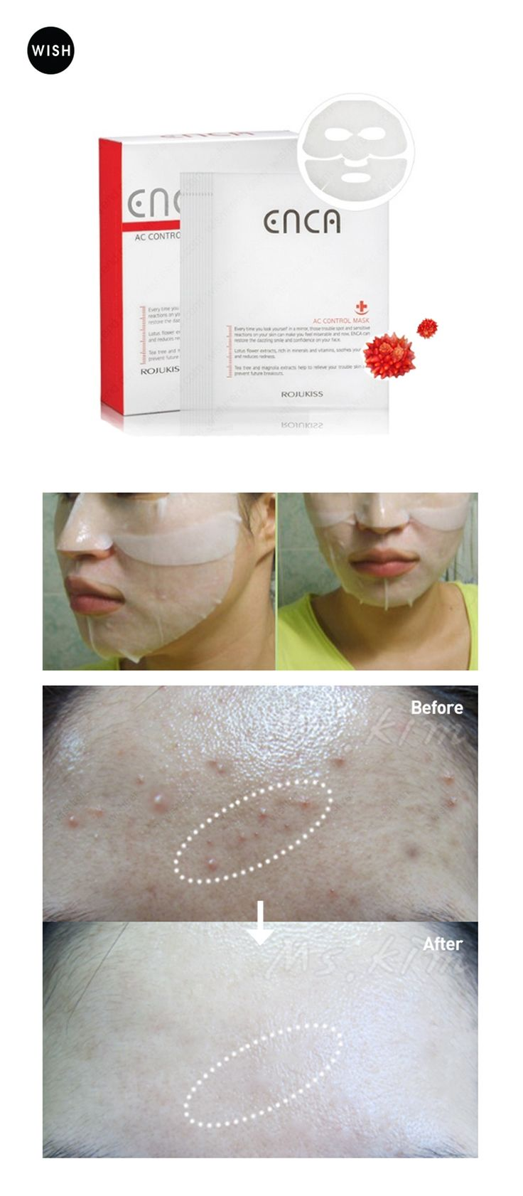 [Beauty Tip] How to get rid of ACNE fast This mask pack is very effective in…