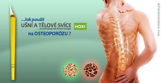 Při akutním projevu osteoporózy můžeme použít až 3 tělové svíce denně na místo projevu. Pokud se osteoporóza projevuje na více místech na těle, rozprostřeme aplikaci tak, abychom použili maximálně tři svíce za jeden den. To znamená, že aplikujeme pouze jednu svíčku na čtyři postižená místa....