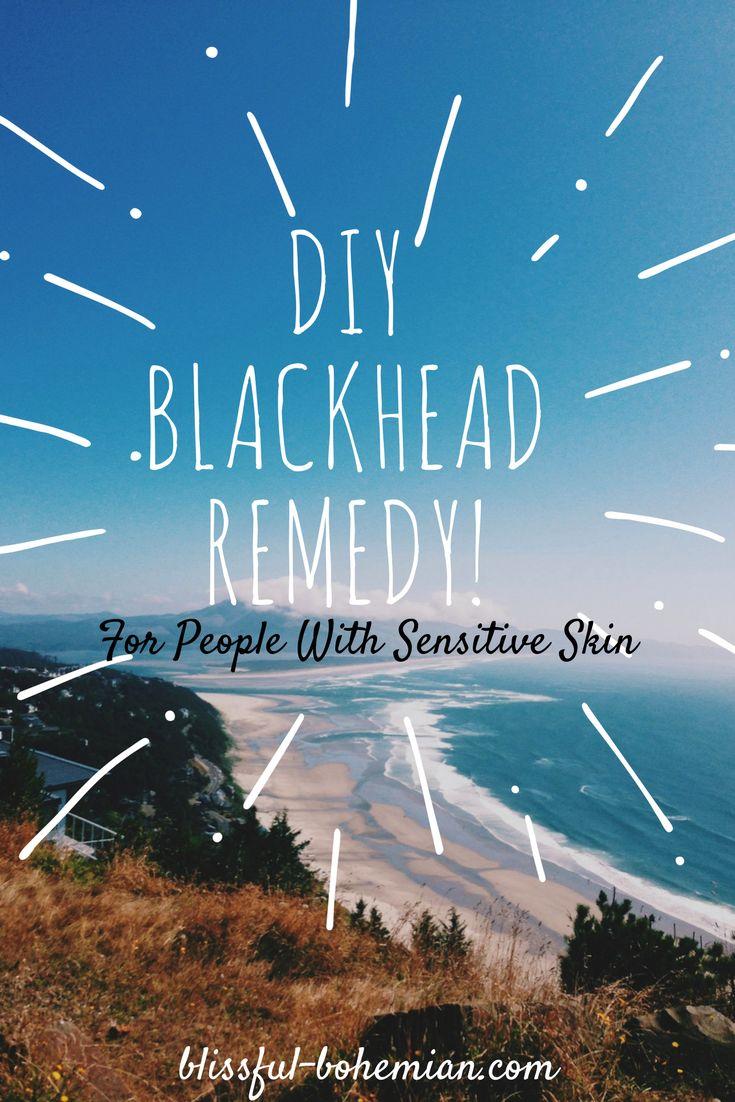 DIY Blackhead Remedy | Sensitive Skin | Blackhead Remover | Natural Beauty