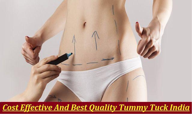 Need To Know - Affordable Price #TummyTuckSurgery At #BestHospitalInIndia