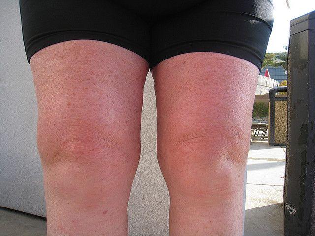 Trochanteric+Bursitis+Exercises