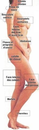 Découvrez les zones qui peuvent être traitées par la liposuccion Plus d'informations