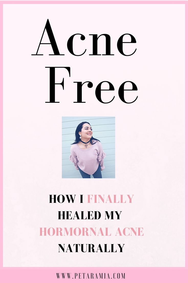 """""""I am being healthy because I want to clear my acne naturally"""" was a secret that I had kept for a long time. For over a year, it took me a while to say the word 'acne' out loud without feeling embarrassed. I became insecure and suffered from 'skin anxiety'. The acne that had appeared..."""