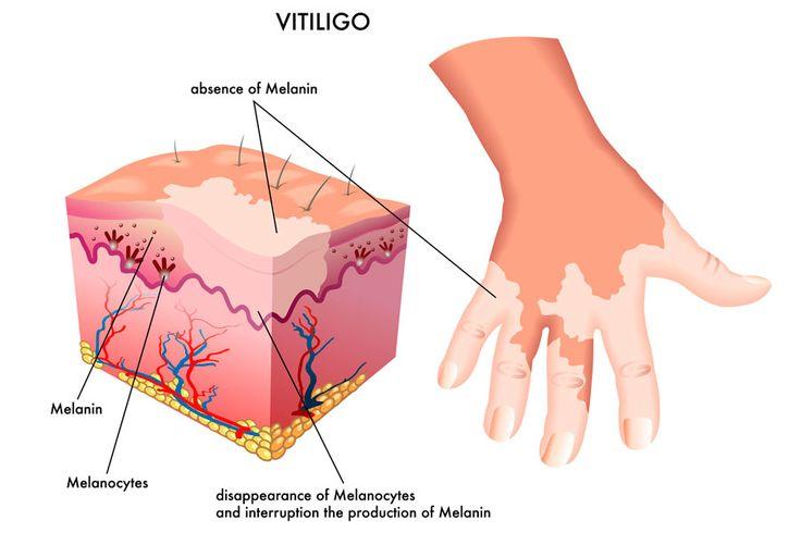 ***¿Qué es el vitíligo?*** El vitíligo es una condición de la piel que se presenta con manchas blanquecinas sobre diversas zonas del cuerpo....SIGUE LEYENDO EN.... http://comohacerpara.com/que-es-el-vitiligo_7748b.html