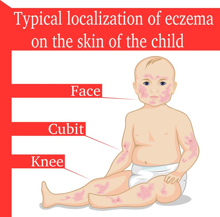 How To Deal With Eczema In Children During Winters