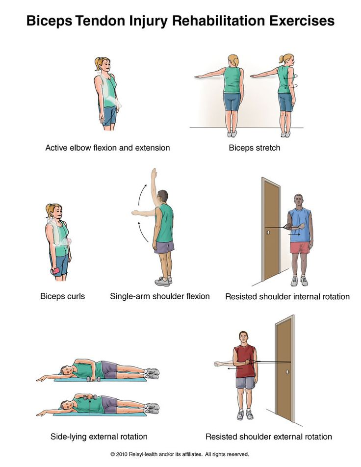 Biceps Tendon Injury Exercises   Summit Medical Group. Written by Tammy White, MS, PT, and Phyllis Clapis, PT, DHSc, OCS, for RelayHealth. Published by RelayHealth. © 2012 RelayHealth and/or its affiliates. All rights reserved.