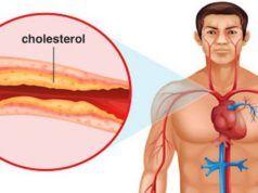 Vědecky potvrzeno: Nejlepší potravina na světě na krevní tlak, infarkt, mrtvici a cholesterol!