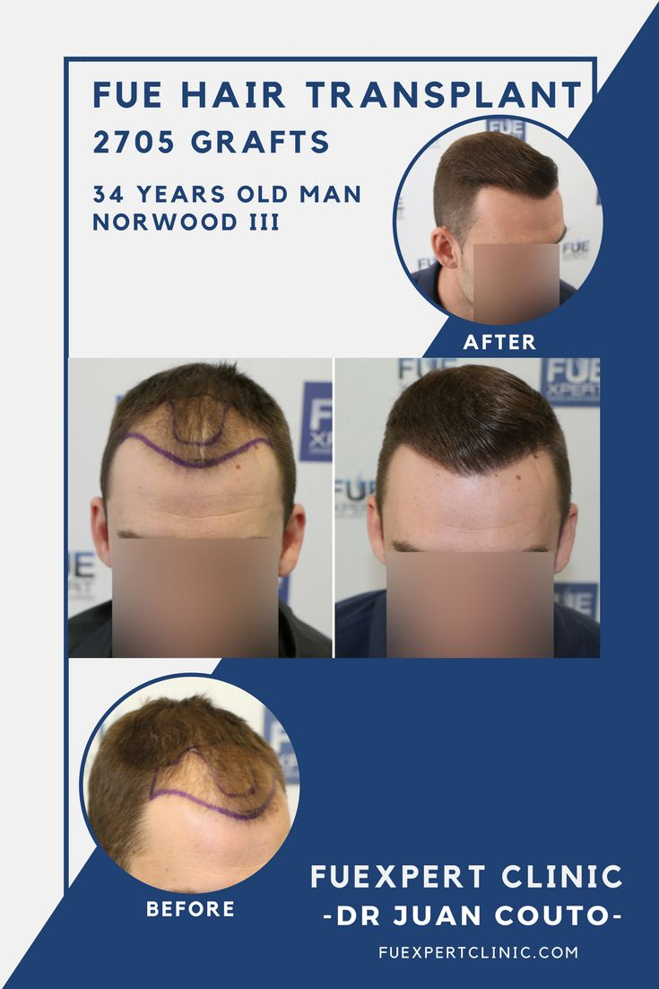 2705 Grafts - FUE Hair Transplant at FUExpert Clinic by Dr Juan Couto - Madrid, Spain