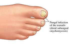 Causes and Cures for Toenail Fungus