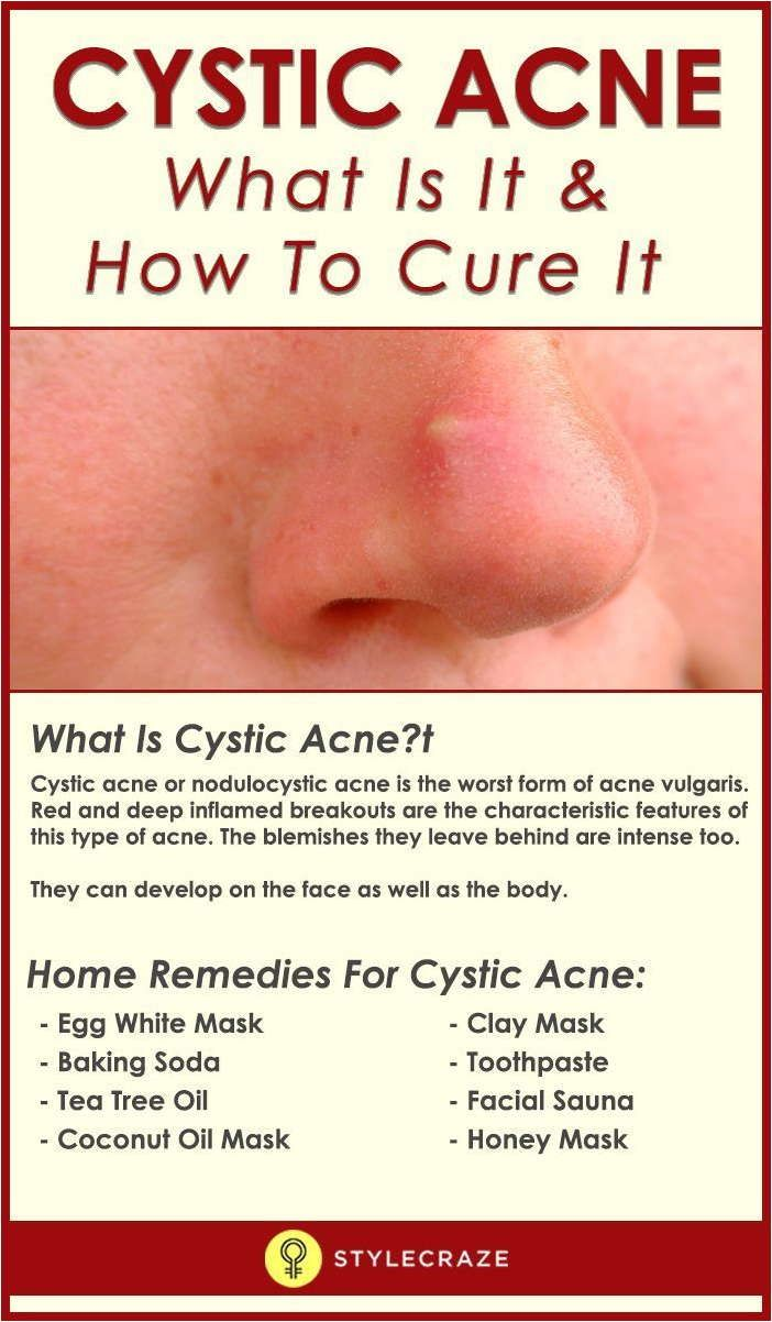 Learn Fast And Effective Treatments For Zits Cystic Acne Treatment Cystic Acne Remedies Cystic Acne