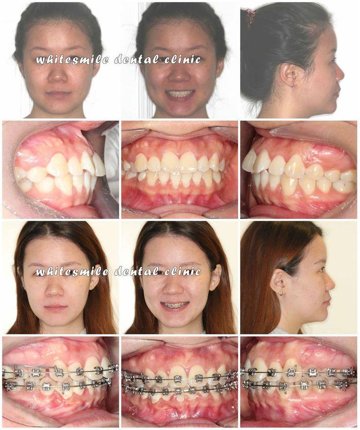 Dental Assistant Duties List%0A      orthodontics  whitesmile  instashop  instaclinic  instamalaysia   selerbrity  airport  openbite  bazarpaknil  dentalassistant bazaronline dentalmalaysia