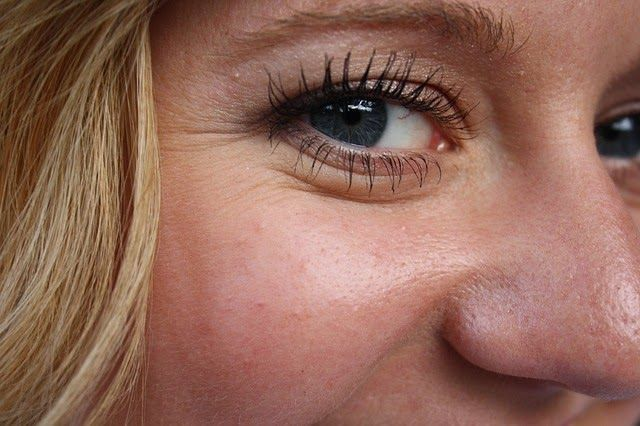 get rid of crowes feet and laugh lines around eyes