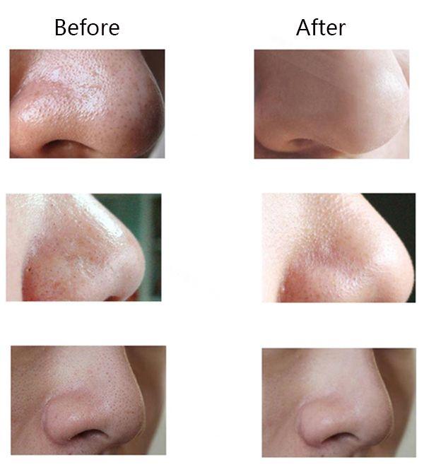 Removedor elétrico blackhead sução ance vácuo microdermabrasion poro limpador lifting facial da pele