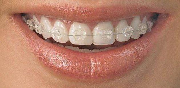 Klinik für allgemeine Zahnmedizin, Kieferorthopädie, Oralchirurgie und Röntgen-Orthopan http://ordinacijaknego.hr/de/kieferorthopadie.html