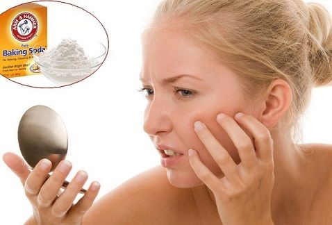 baking-soda-to-get-rid-of-acne-scars-pimple-marks