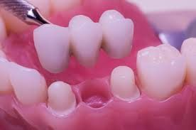 A #bridge, also known as a fixed partial denture, is a dental restoration used to replace a missing tooth by joining permanently to adjacent teeth or dental implants.