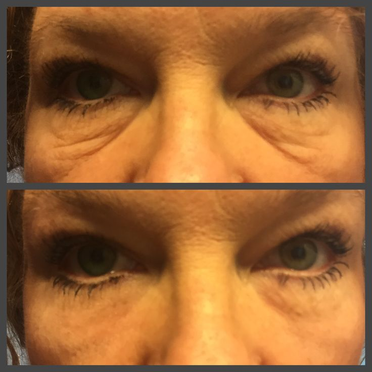 Instantly Ageless is phenomenal. The top pic is BEFORE Instantly Ageless. The bottom pic is 2 minutes AFTER applying Instantly Ageless. Message me for trial sachets for $10 It's amazing. http://LookAtHerEyes.com/CP2/?u=3394