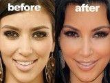 Kim Kardashian vorher und nachher – #Kardashian #Kim #nachher #und #vorher
