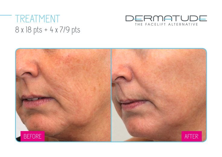 Before and After #Dermatude #MetaTherapy