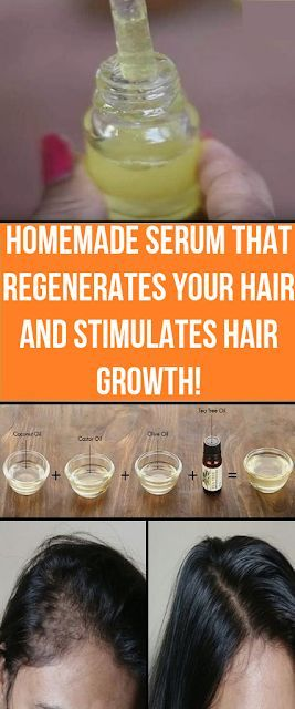 Selfmade Serum That Regenerates Your Hair And Stimulates Hair Progress!