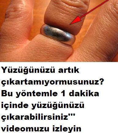 Şişen parmaktan yüzük nasıl çıkarılır