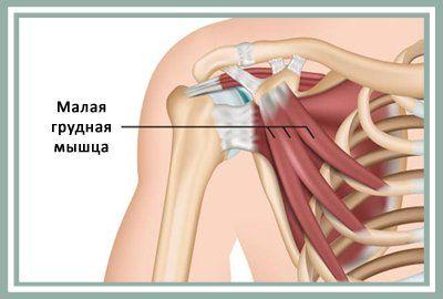 Кто бы мог подумать, что источником боли и серьезных проблем может стать небольшая мышца, расположенная в верхней части торса – под гораздо более массивной большой грудной мышцей! Musculus pectoralis minor – так на латинском языке звучит ее название и переводится на русский как «малая грудная мышца». От нее зависит подвижность лопатки – перемещение от позвоночника вдоль ребер грудной клетки. Фактически, малая грудная мышца отвечает за то, разовьется в плечах сутулость или сформируется…