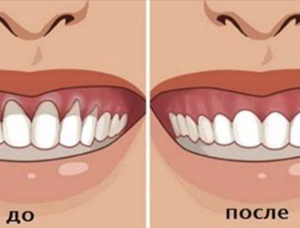 Вы заметили оголение шейки или корня зуба? Немедленно начинайте лечение — 6 натуральных рецептов!