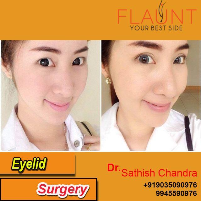 Eyelid Surgery. Please visit us- www.cosmeticsurgerymangalore.com