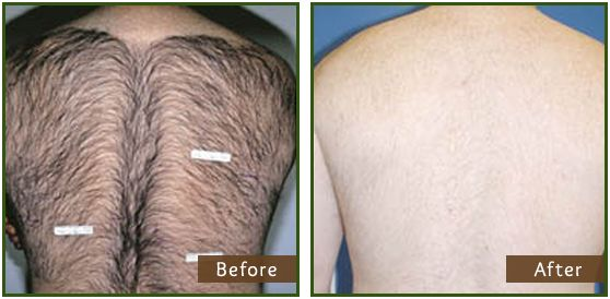 laser hair removal | image gallery | pinterest | vlasy a, Human Body