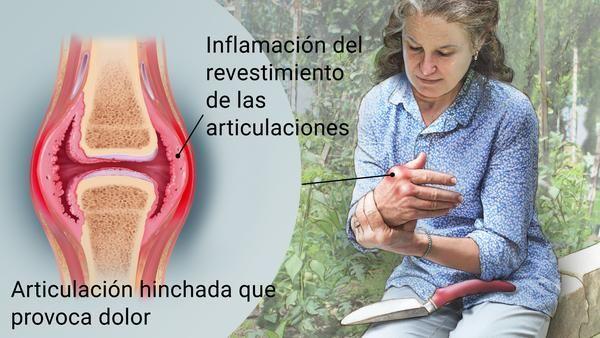 artritis inflamatoria cronica
