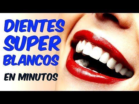 COMO BLANQUEAR LOS DIENTES EN CASA RAPICO NATURALMENTE Blanqueamiento Dental Casero forma Natural - YouTube