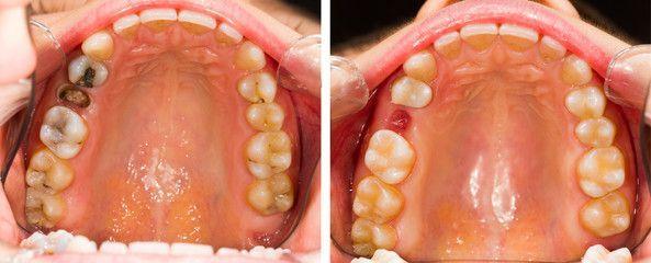 Pin On Wisdom Teeth Swelling
