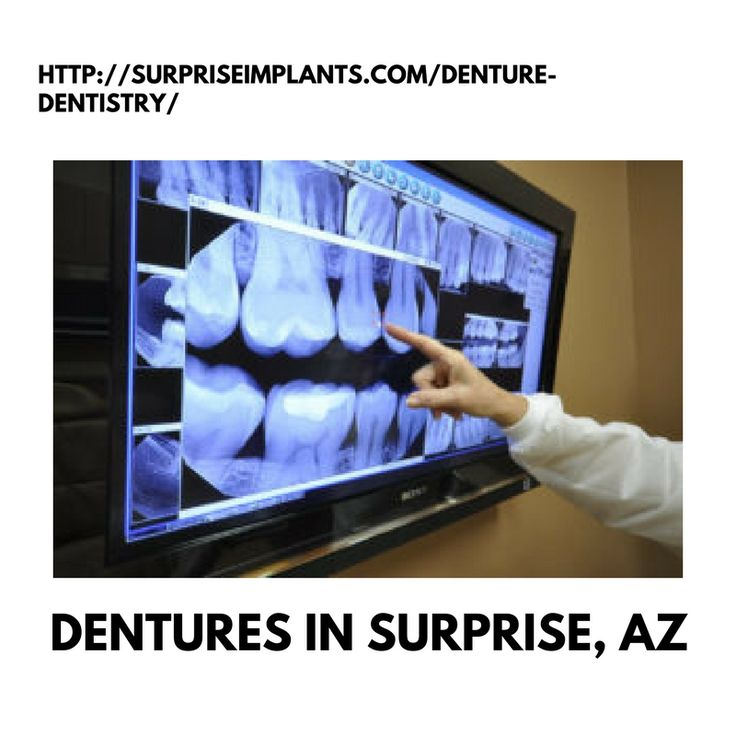 We are providing Dentures in Surprise, AZ to a category of products that are used to increase the retention and stability of different types of implants.