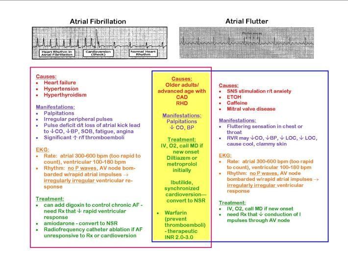 14 best nursing made easy easy being a relative term images on cardiac dysrhythmia ekg venn diagram fun ccuart Gallery