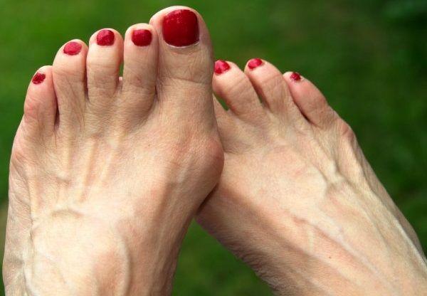 Косточки на ногах. Причины возникновения. Как избавиться от растущей косточки на ноге в домашних условиях. Упражнения. Народные рецепты.