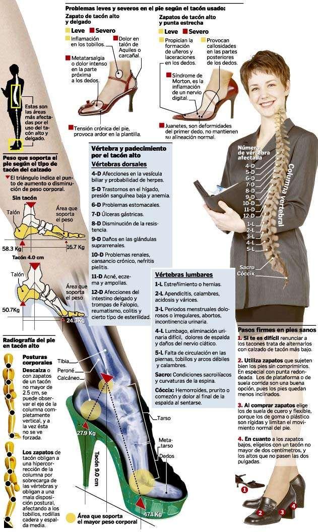 Tacónes de más de 4 centímetros de altura peligro contra la salud