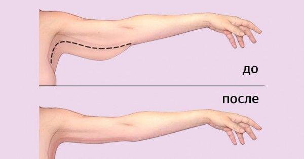 Jak usunąć tłuszcz z ramion 3 skuteczne sposoby.  Chcę krzywych wdzięku!
