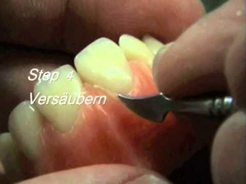Merz Dental Ausmodellation Zahnersatz deutsch - YouTube