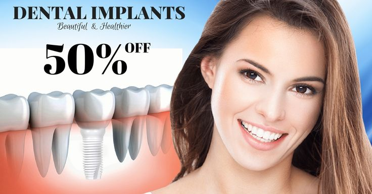 dental implant price list