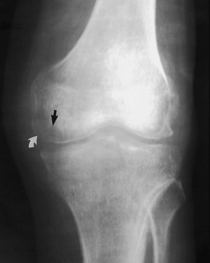 17 Best images about Knee arthritis on Pinterest | Knee ...