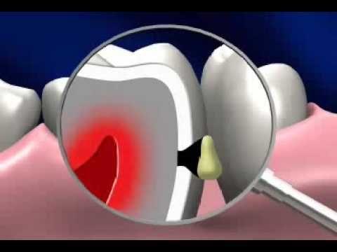 """О том, как коварен кариес зубов    Кариес контактных поверхностей самый коварный из кариесов. Из-за его межзубного расположения, мы до последнего не видим привычной нам черной кариозной """"дырки"""". Которая становится заметна невооруженному глазу только когда разрушена почти половина зуба  , а это уже в большинстве случаев затронут нерв зуба и развивается пульпит.    Что сделать, чтобы не пропустить контактный кариес? Нужно обратиться к стоматологу если у вас:   Кровоточивость десны между зубами…"""