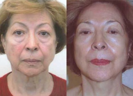 Face Manipulation Workouts Simply Take A Few Minutes Per Day To Look Years Younger