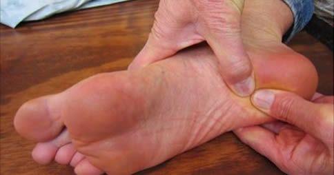 Lo sperone calcaneare ha come caratteristica principale la calcificazione dei tendini che influenzano il calcagno [Leggi Tutto...]