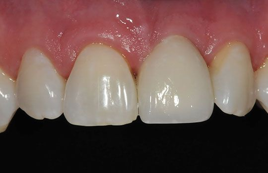 Dentures and Implants Downtown Toronto Dentist